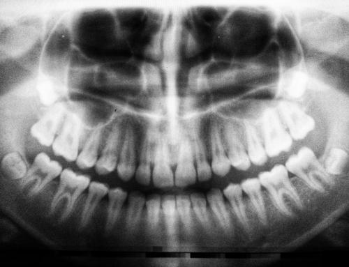 4 Dinge, die beim Zahnarztbesuch helfen