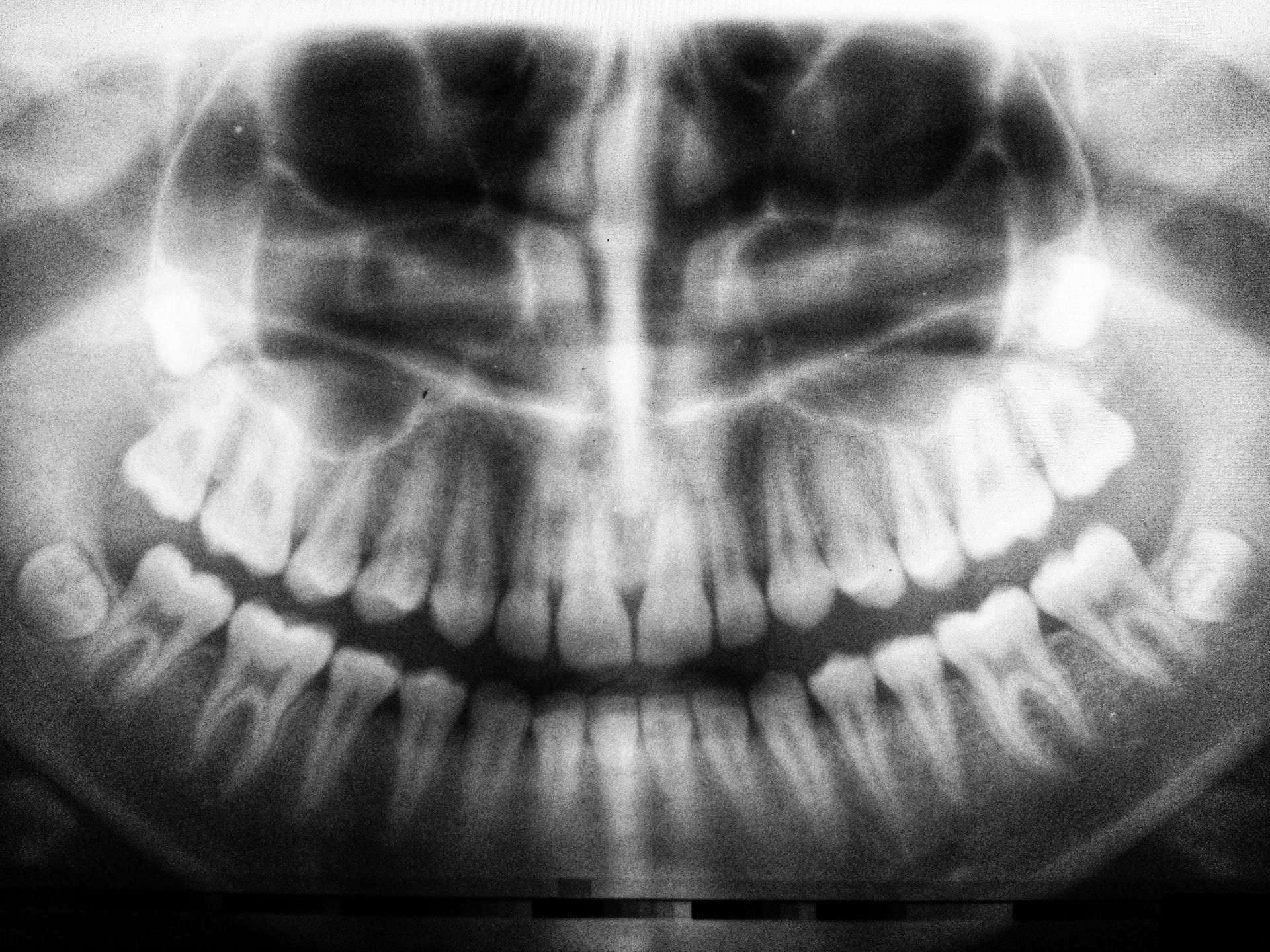 Tipps für Zahnarztbesuch